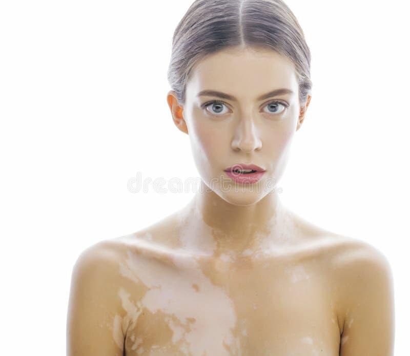 Härlig ung brunettkvinna med vitiligo arkivbild