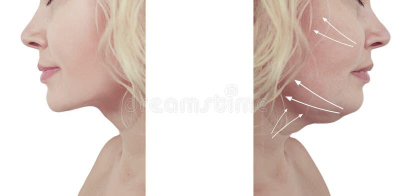 Härliga tillvägagångssätt för liposuction för collage för kvinnadubbelhakaföryngring före och efter arkivfoto