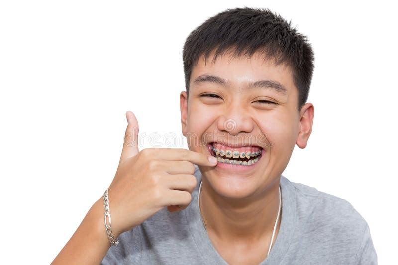 Härligt le av den stiliga pojken som pekar till tänder, stödjer tand- arkivfoto