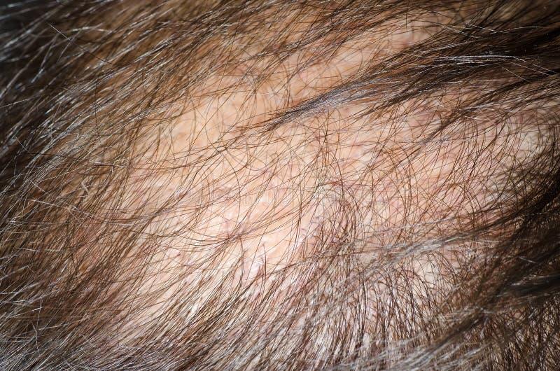 hårförlust royaltyfria bilder