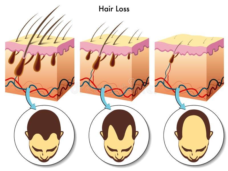 hårförlust royaltyfri illustrationer