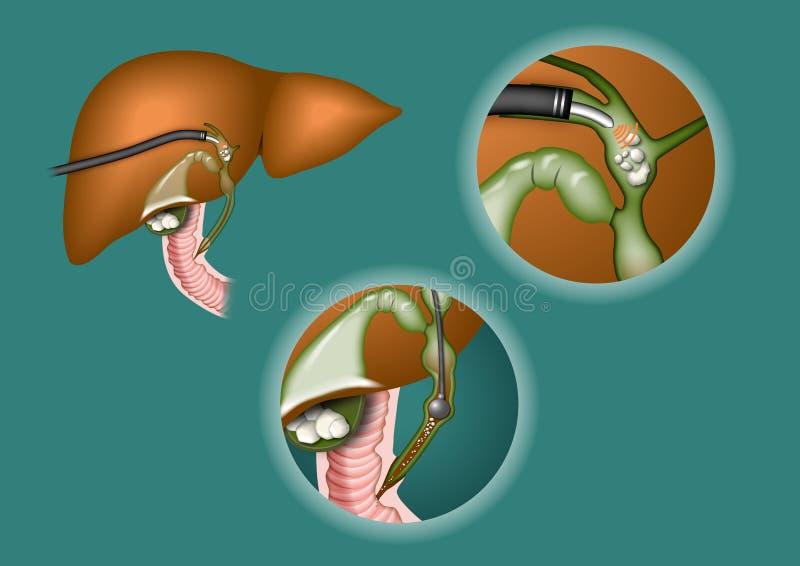 Hígado ilustración del vector
