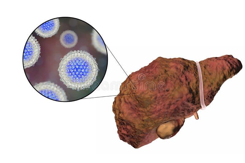Hígado con la infección de la hepatitis C stock de ilustración