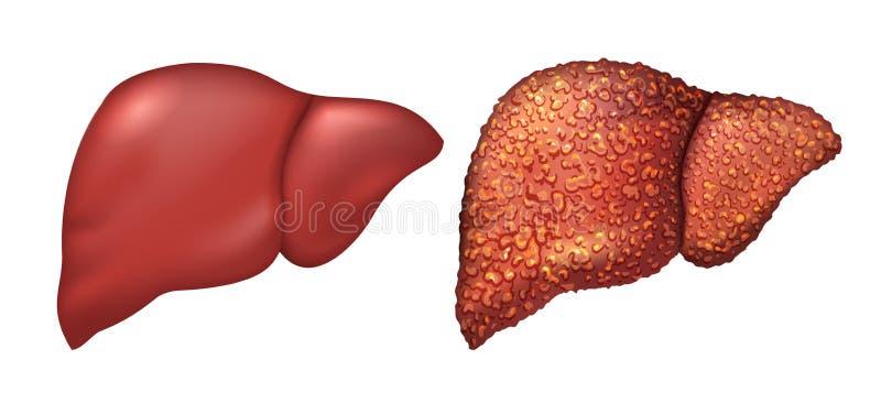 Hígado de la persona sana Pacientes del hígado con hepatitis El hígado es persona enferma Cirrosis del hígado Alcoholismo de la r ilustración del vector