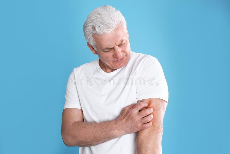 Hög man som skrapar armen Allergitecken arkivfoton