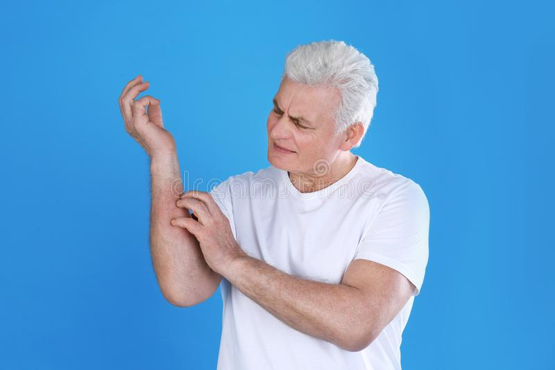 Hög man som skrapar underarmen Allergitecken royaltyfri foto