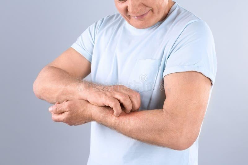 Hög man som skrapar underarmen på grå bakgrund Allergitecken royaltyfri fotografi