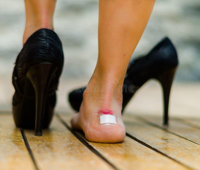 Höga häl gör ont mycket ofta, fot med den vita lilla lappen på ankeln, en fot på golvet och annan med den svarta skon royaltyfria bilder