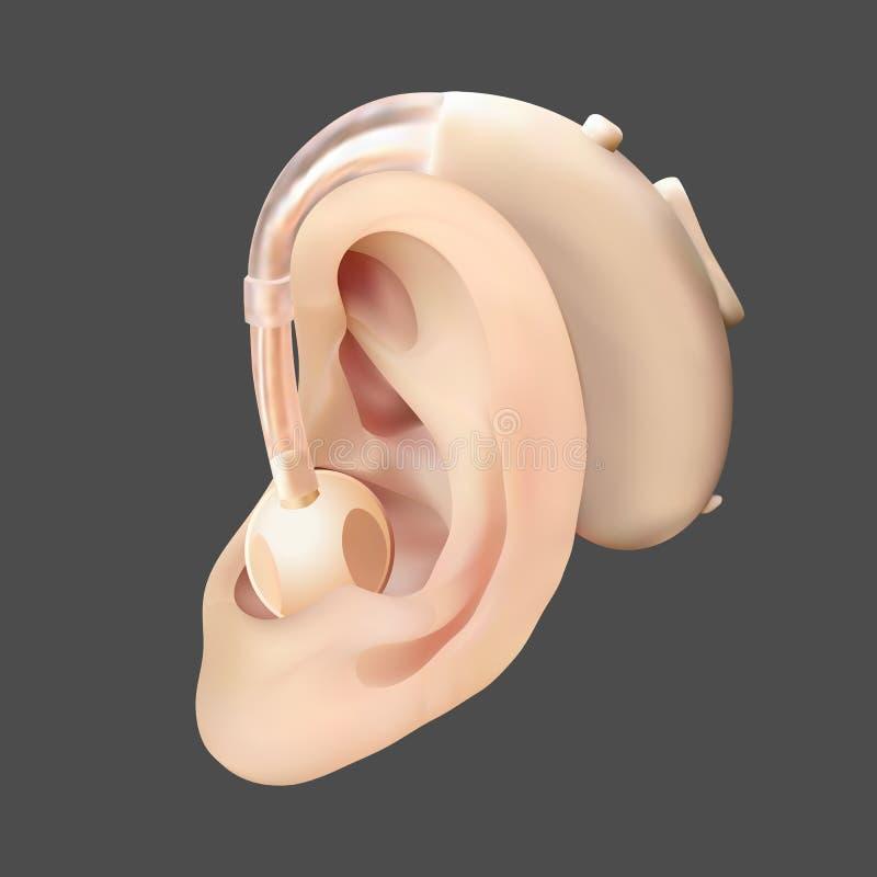 Hörapparat bak örat, på bakgrunden av diagrammet för solid våg Behandling och prosthetics av utfrågningförlust in vektor illustrationer