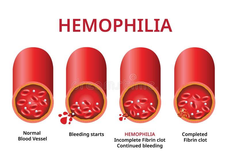 h?mophilie schädigendes Blutgefäß, Hämophilie-Blutgerinnungsstörung - Vektor lizenzfreie abbildung
