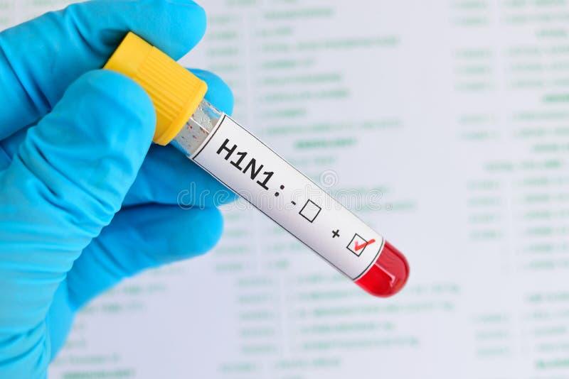 H1N1 θετικό στοκ εικόνες