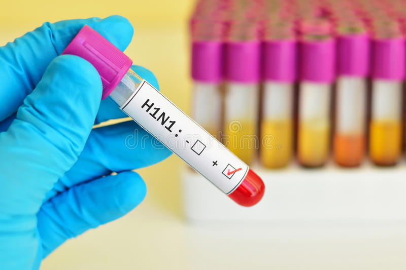 H1N1 positive. Blood sample positive with H1N1 influenza virus royalty free stock photos