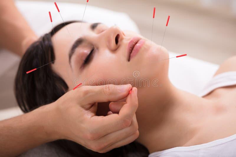 H?rlig kvinna som f?r akupunkturbehandling arkivbild