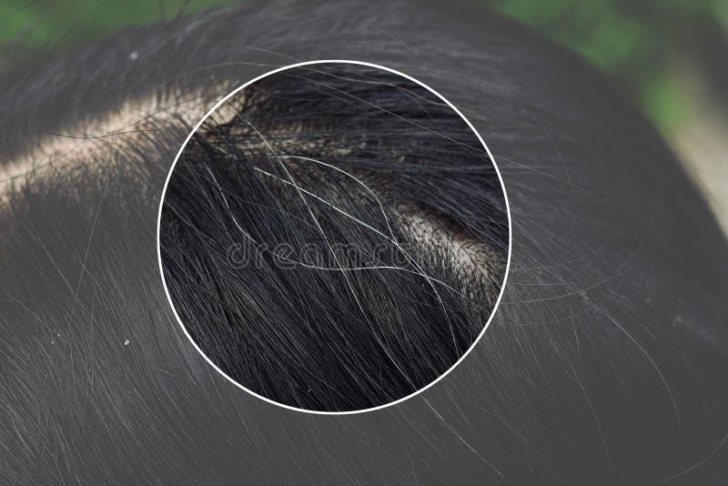 Haar en scalp gezondheidsproblemen, Jonge Aziatische vrouw met eerste grijs haar stock afbeelding