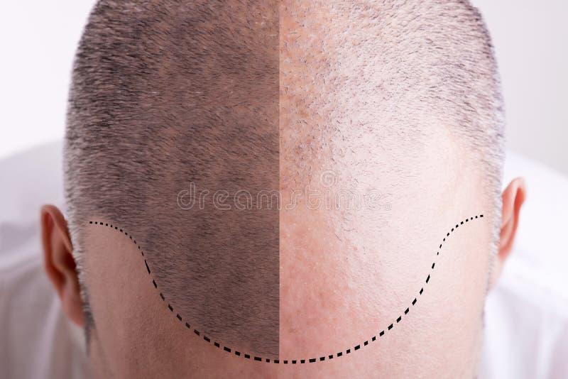 Haarausfall - vorher und nachher lizenzfreies stockbild