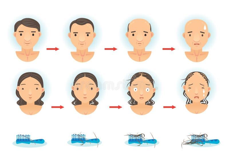Haarverlies vector illustratie