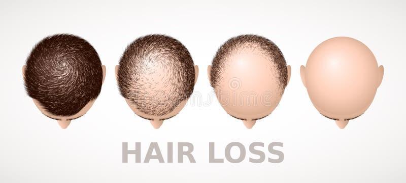 Haarverlies Reeks van vier stadia van alopecia vector illustratie