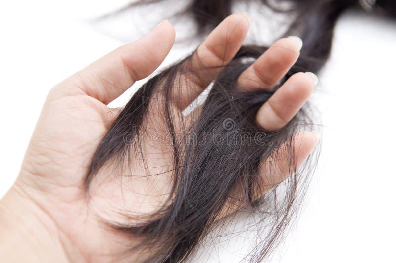 Haarverlustproblem lizenzfreie stockfotos