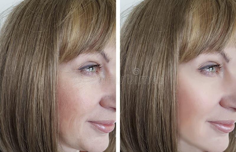 Haga frente a las arrugas de la mujer antes y después de la piel de la cosmetología de los procedimientos, tratamiento fotos de archivo