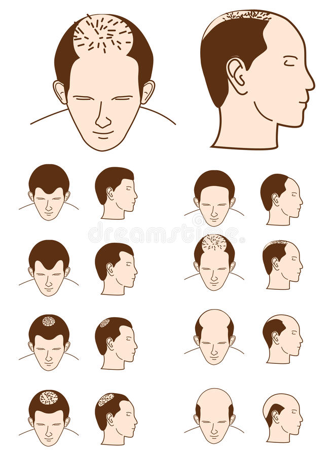Download Hair loss stock vector. Illustration of hair, doctor - 17462553