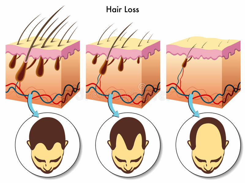 Hair loss. Medical illustration of the effects of the hair loss royalty free illustration