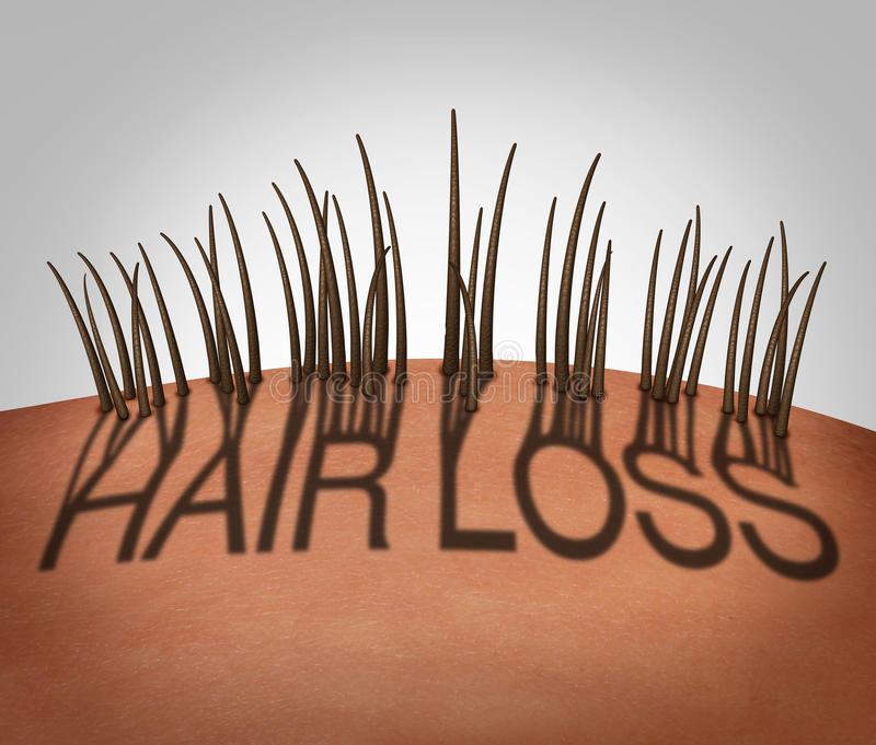 Hair Loss. And balding medical concept as a receding hairline with text as a shadow with thinning follicles on a mostly bald head as a 3D illustration royalty free illustration