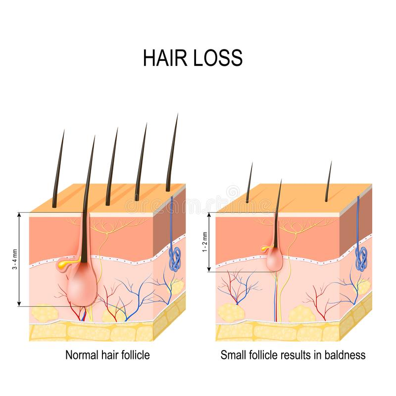 Hair loss baldness. Normal hair follicle and skin with Alopeci. A. human skin. Vector illustration vector illustration