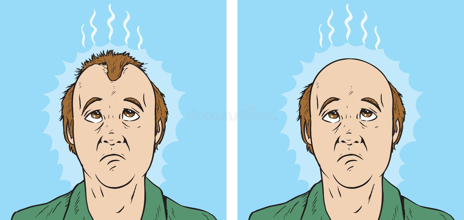 Hair loss cartoon royalty free illustration
