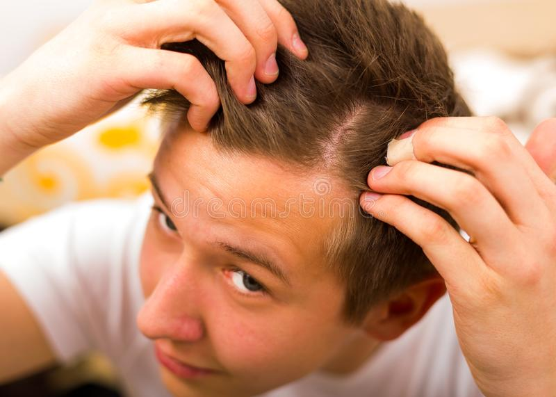 Hair loss comes even in youth. Young man having periodical hair loss and alopecia stock images