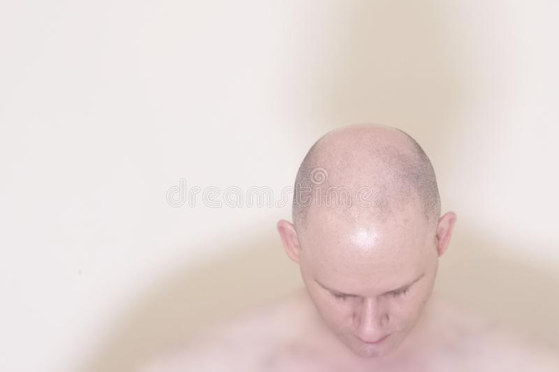 Hair loss male pattern baldness man with bald head on top royalty free stock photos