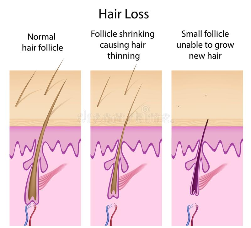 Hair loss process. Hair loss basis with changes in hair follicles, eps8