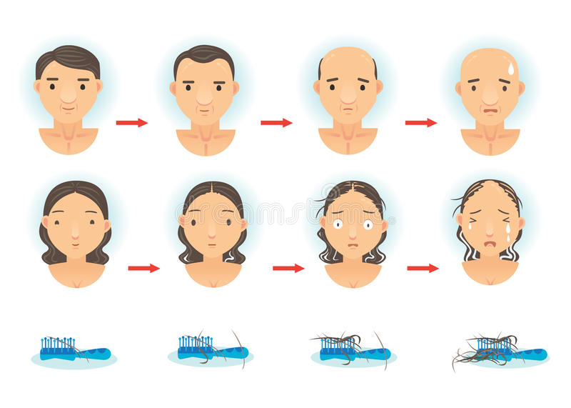 Hair Loss. The process of hair loss. Cartoon illustration vector illustration