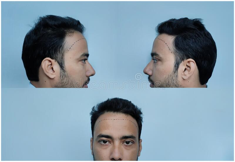 Hair loss or  Receding hairline in man royalty free stock image