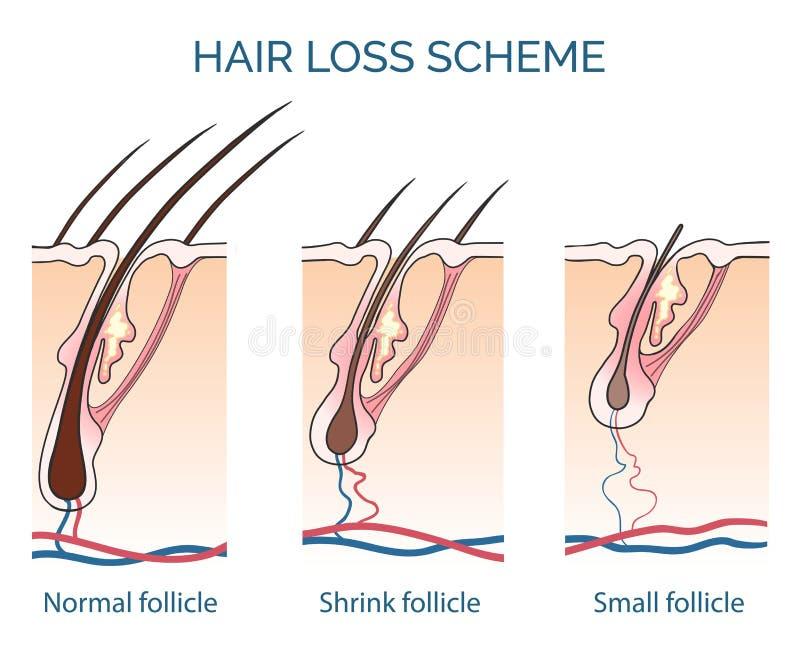 Hair loss scheme. Loss hair, growth hair problem, health hair. Vector illustration vector illustration