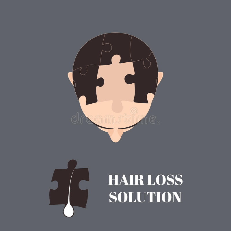 Hair loss solution. Top view portrait of a man with hair puzzle elements. Jigsaw puzzle hair loss solution. Solving hair loss problem concept. Hair royalty free illustration
