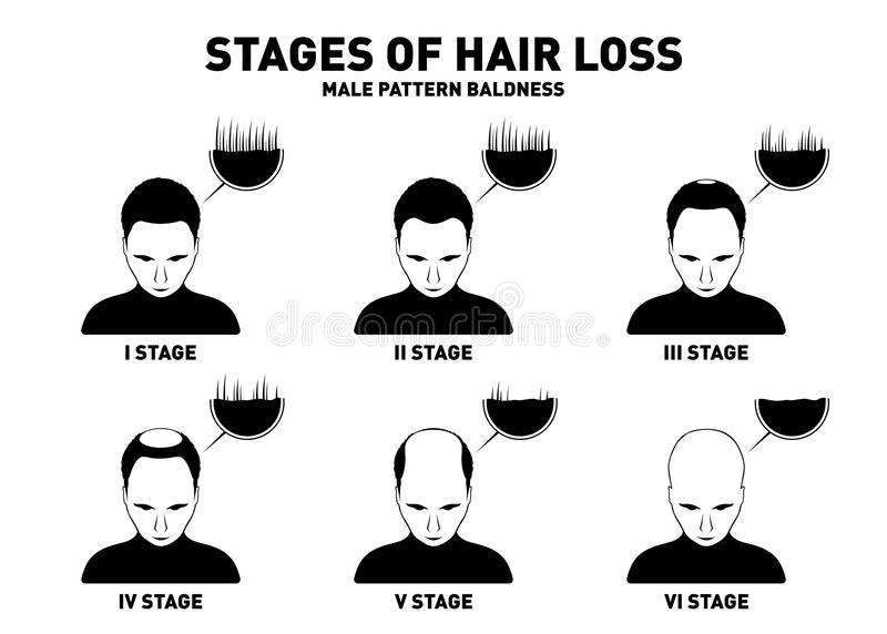 Hair loss. Stages and types of male hair loss. Male pattern baldness. Head of hairy and bald man in top view. Alopecia concept. Vector stock illustration