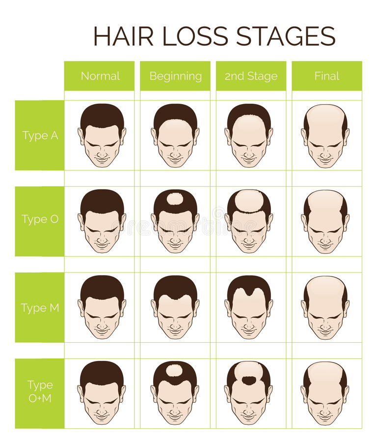 hair loss stages and types for men stock vector illustration of male  flat 69726480 turkey clipart free turkey clip art free images