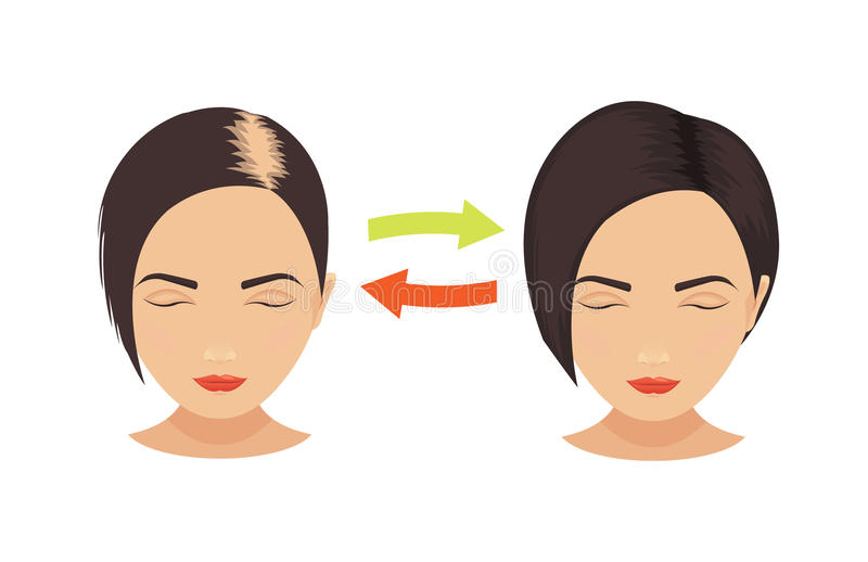 Hair loss in women. Woman with hair loss problems before and after hair treatment and hair transplantation. Female pattern hair loss set. Hair care concept vector illustration