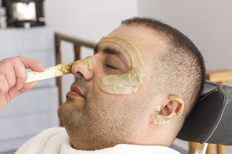 Hair removal. Man`s face sugaring epilation in Turkey. Hair removal. Man`s face sugaring epilations in Turkey royalty free stock images