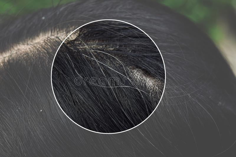 Hair and scalp health problems, Young asian woman with first grey hair. stock image