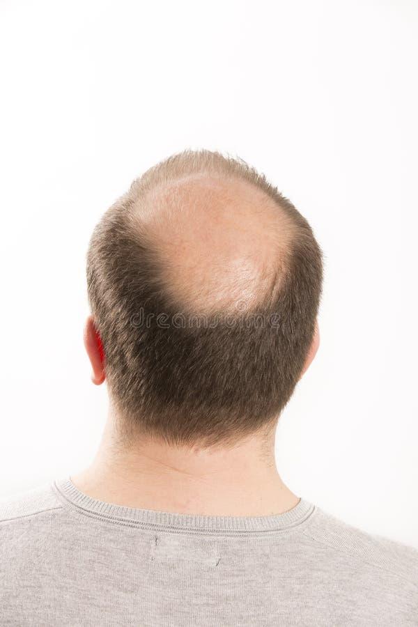 Haircare da queda de cabelo do homem da calvície da calvície fotografia de stock royalty free