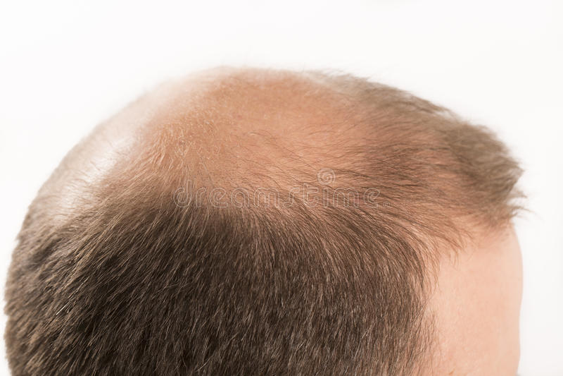 Haircare da queda de cabelo do homem da calvície da calvície foto de stock royalty free