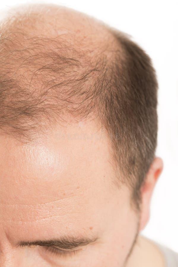 Haircare da queda de cabelo do homem da calvície da calvície imagens de stock