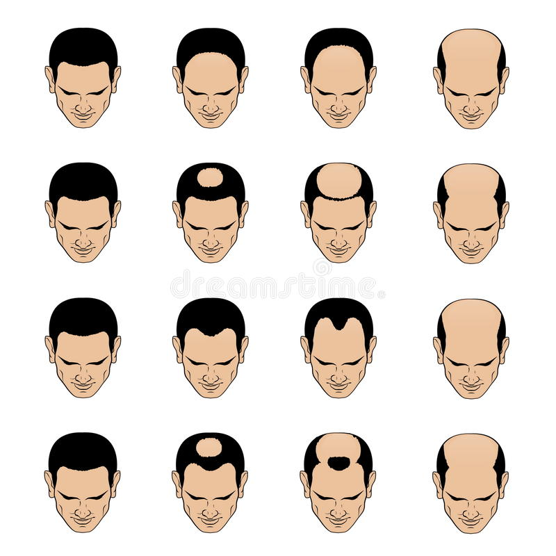 Free Hairl Loss Patterns And Stages For Men Stock Images - 85821894
