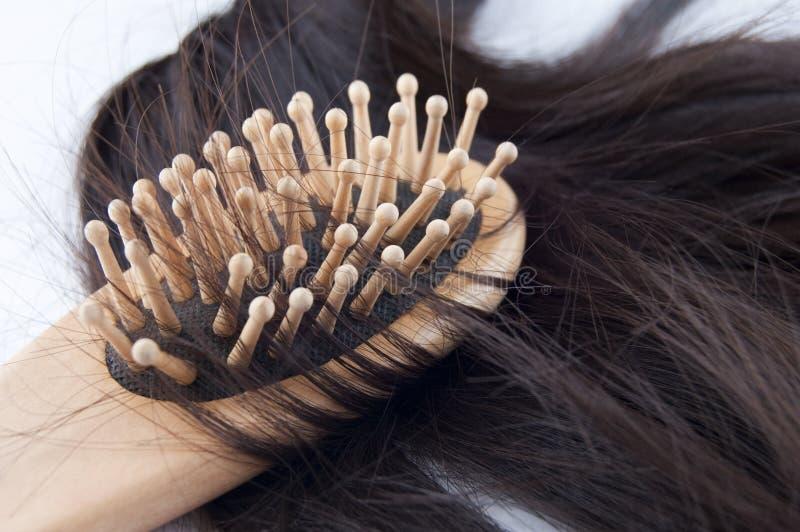 Hairloss royalty-vrije stock afbeelding