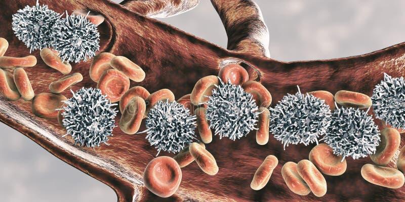 Hairy cell leukemia. 3D illustration. It is a hematological malignancy, chronic lymphocytic leukemia, with accumulation of abnormal B lymphocytes vector illustration