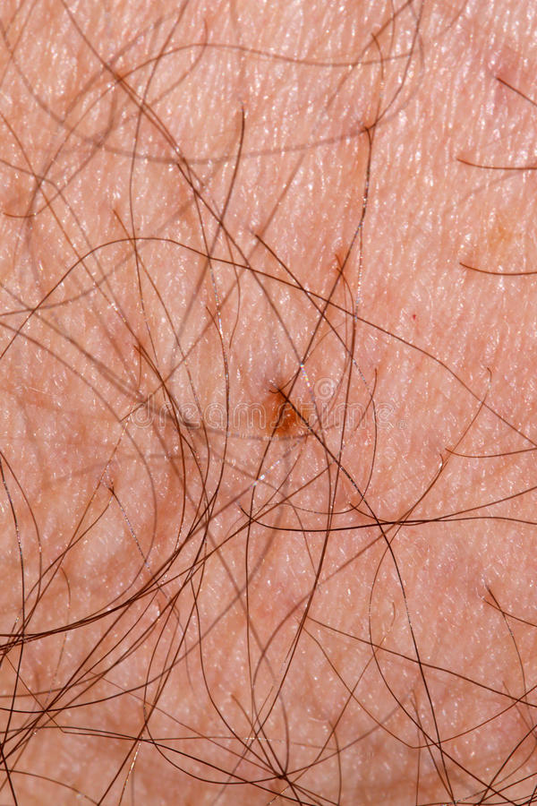 Hairy Skin. Macro of skin with hair coming out; in vertical orientation royalty free stock photos