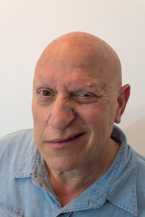 Halbes Grinsen des älteren Mannes, kahl, Alopezie, Chemotherapie, Krebs lizenzfreie stockfotos