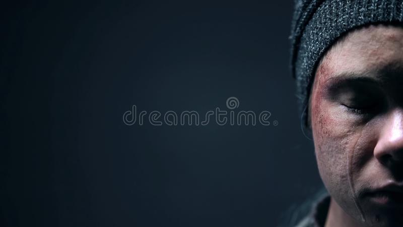 Half-face of crying violence victim closeup, homelessness despair social problem. Stock photo stock image