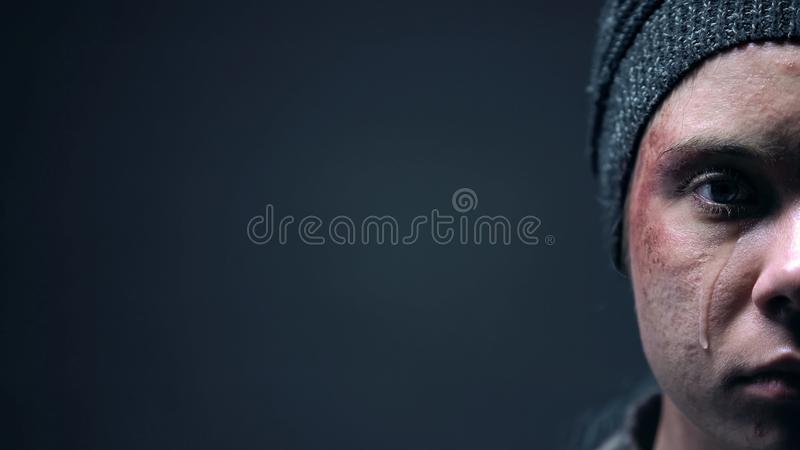 Half-face of injured crying person on dark background, cruelty and violence. Stock photo royalty free stock photos